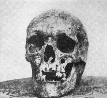 Joseph Warren's Skull in 1850s photo
